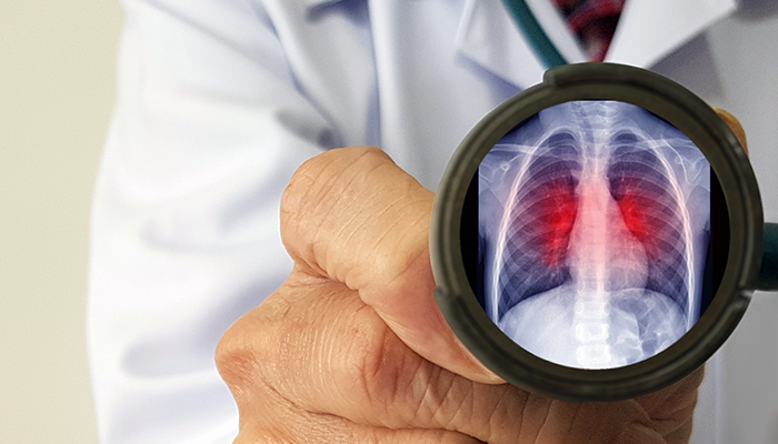 a doctor holding up a stethiscopre with a graphic of an xray inside